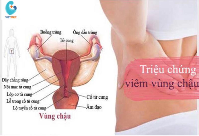 viem-vung-chau